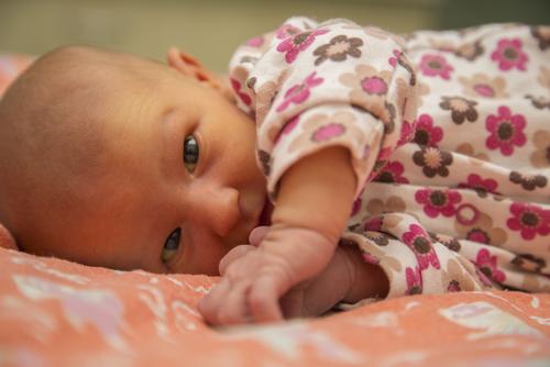 性 黄疸 と は 母乳