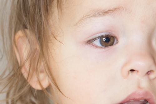 子ども(赤ちゃん・幼児)のものもらいの種類・症状・治療法!プールには入れる?保育園・幼稚園・小学校は?
